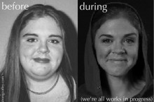 Fat Acceptance, Weight Loss Surgery & Addiction